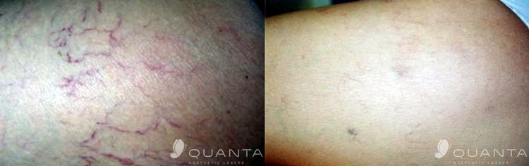 vascular-leg-veins-1064_before_after