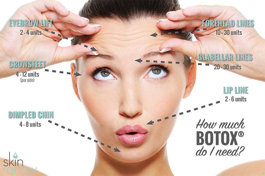 Botox Amp Juvederm Injectables Skin Renew Clinic Medi